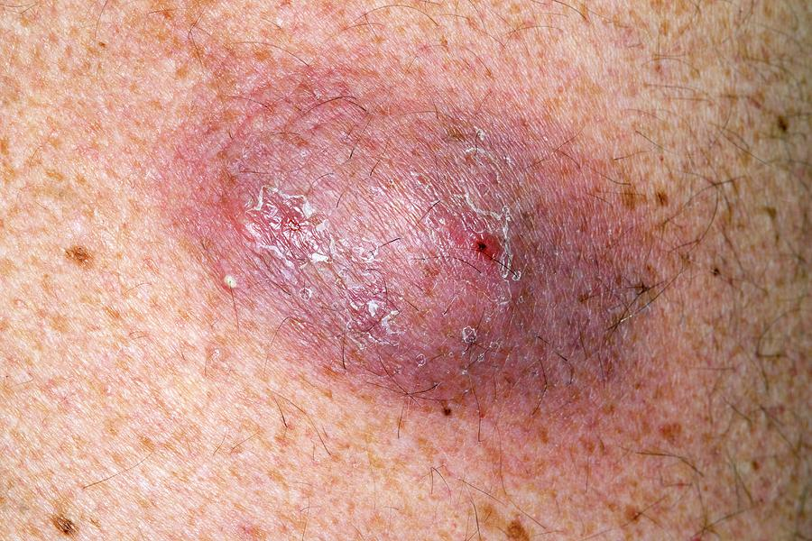 infected dermoid and sebaceous cysts