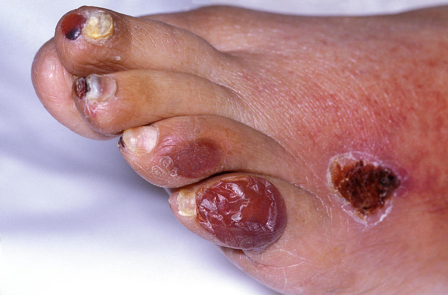 Foot Photograph - Ischaemic Foot by Dr M.a. Ansary/science Photo Library