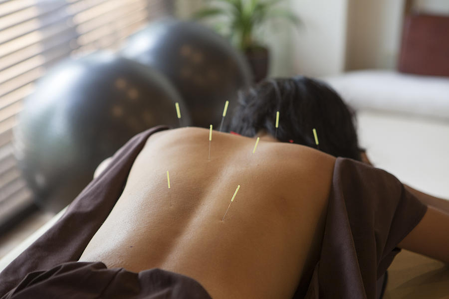 Japanese Female Get Acupuncture Treatment In Kyoto Japan Photograph by Tekinturkdogan
