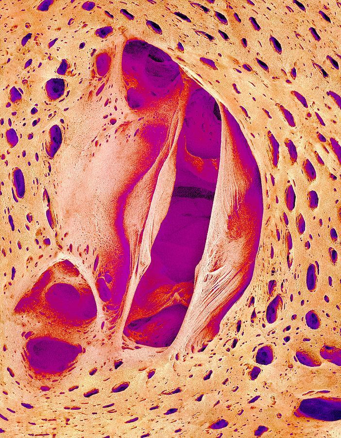 Sardinops Melanostictus Photograph - Japanese Pilchard Heart Valve, Sem by Science Photo Library