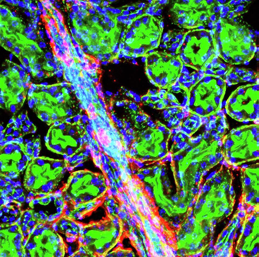 Actin Photograph - Kidney Arteriole by R. Bick, B. Poindexter, Ut Medical School