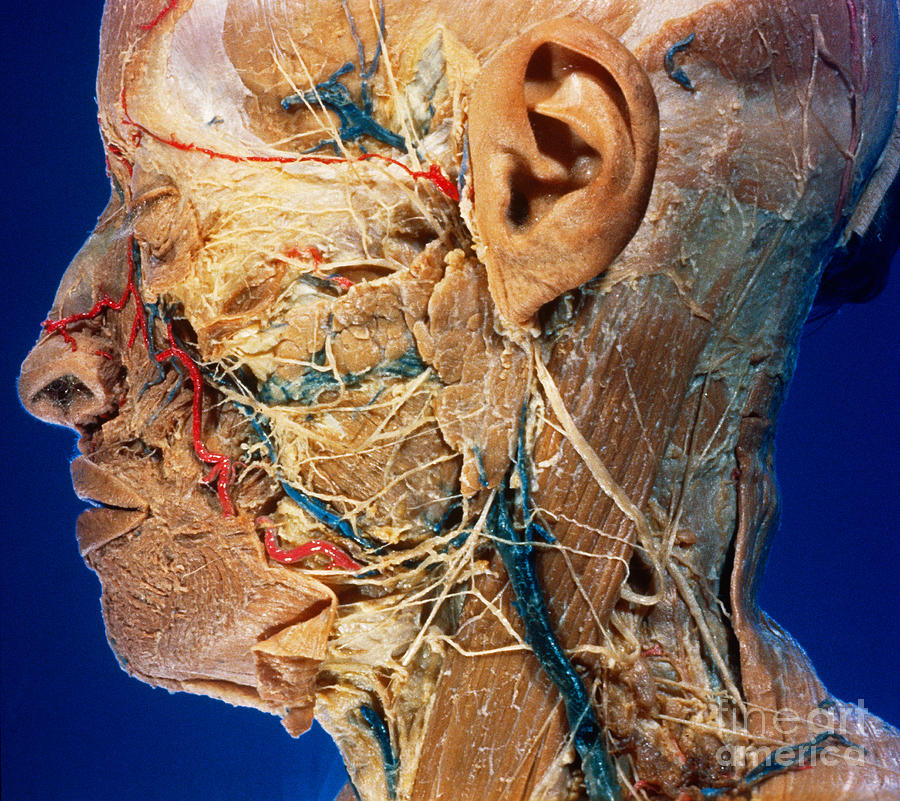 Left Facial Dissection Photograph by VideoSurgery