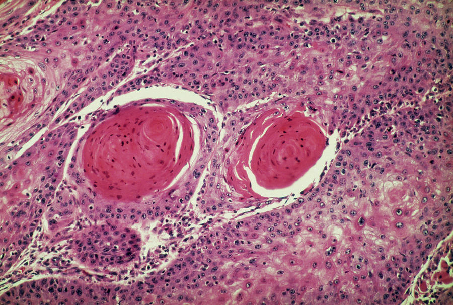 Squamous Cell Carcinoma Photograph - Light Micrograph Of Squamous Cell Carcinoma by Science Photo Library.