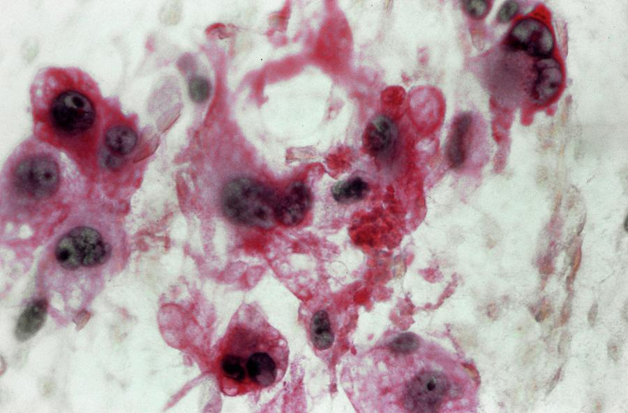 Light Micrograph Photograph - Liposarcoma by Cnri