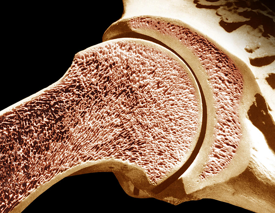 Longitudinal Section Of The Humerus. The Outer Portion Is Compact Bone And The Inner Portion Is Spongy Or Cancellous Bone. Photograph by Dr. Don Fawcett