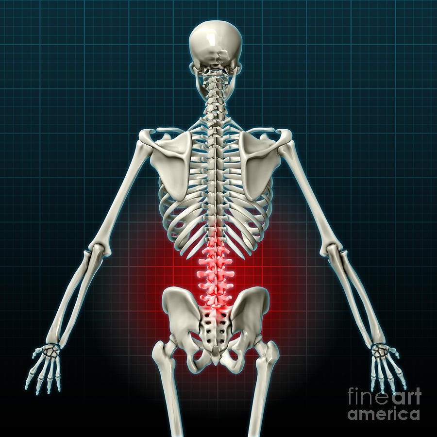 Lower Back Pain Illustration Photograph By Evan Oto