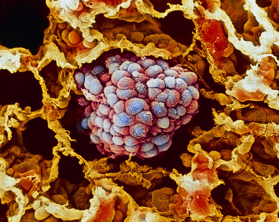 Lung cancer, close-up Photograph by Science Photo Library - MOREDUN ANIMAL HEALTH LTD