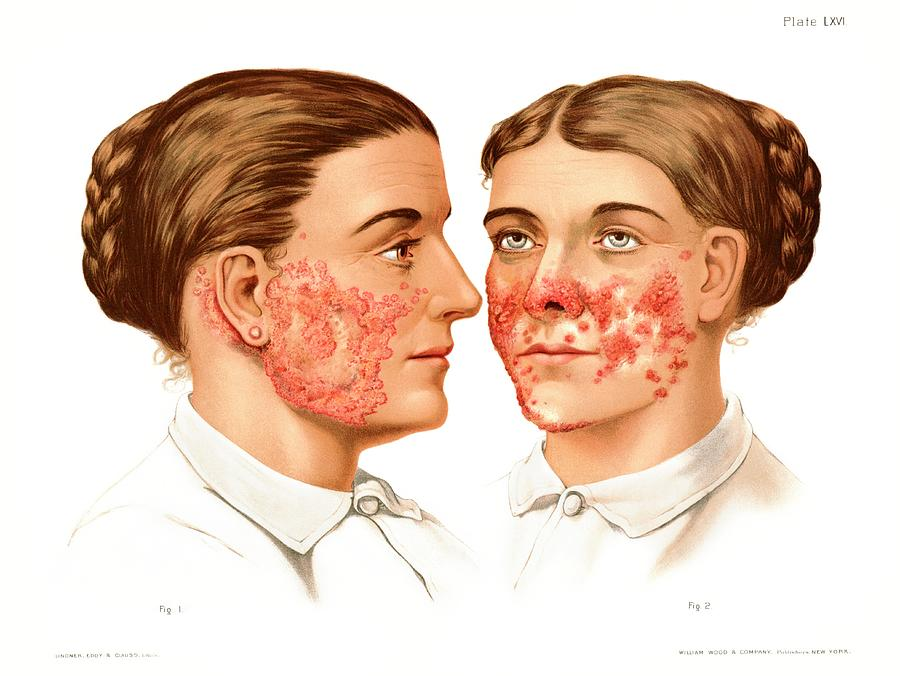 Condition Photograph - Lupus Erythematosus And Vulgaris by Us National Library Of Medicine/science Photo Library