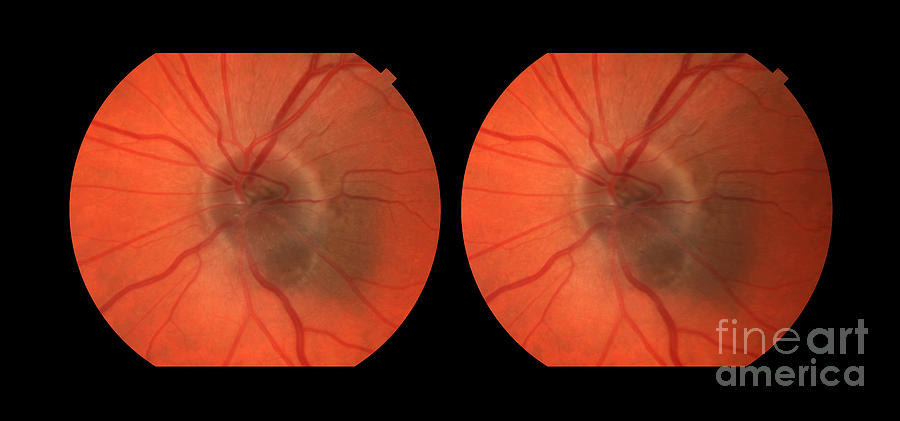 Primary Photograph - Melanoma Of The Optic Nerve Stereo Image by Paul Whitten