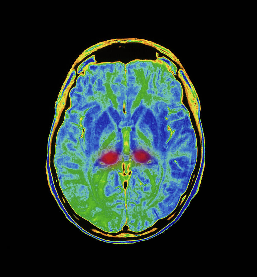 Brain Photograph - Mri Scan Of Human Brain Diseased With Cjd by Simon Fraser/royal Victoria Infirmary, Newcastle Upon Tyne/science Photo Library