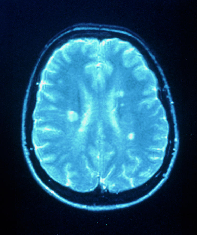 Multiple Sclerosis Photograph - Multiple Sclerosis by Simon Fraser/neuroradiology Department, Newcastle General Hospital/science Photo Library