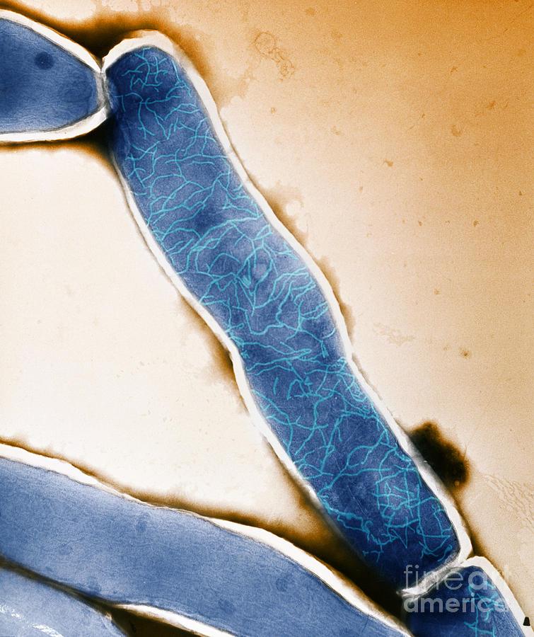 Mycobacterium Photograph - Mycobacterium Leprae Tem by Kwangshin Kim