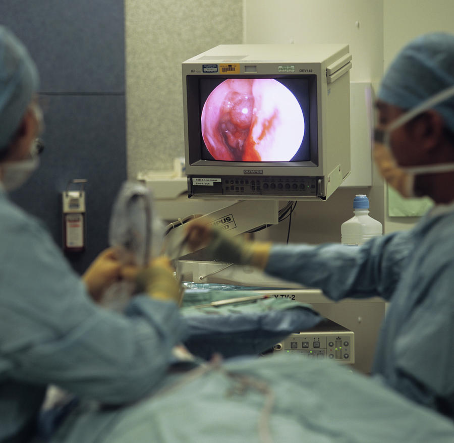 Endoscope Photograph - Nasal Polyp Surgery by Mark Thomas/science Photo Library