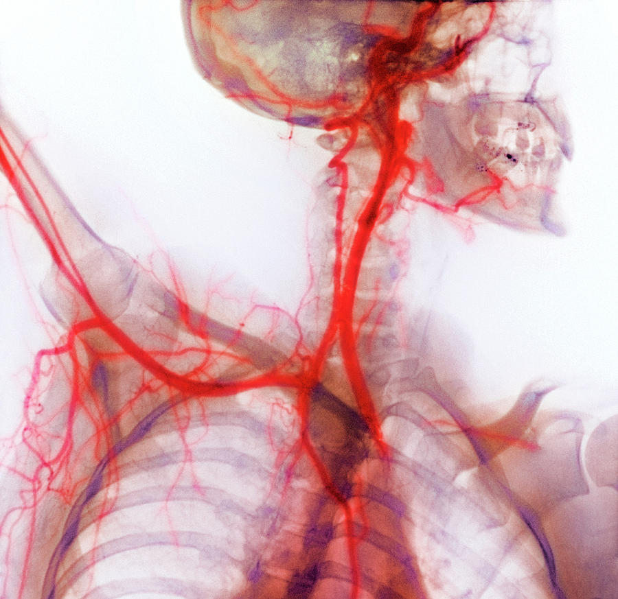 Subclavian Artery Photograph - Neck And Shoulder Arteries by Cnri