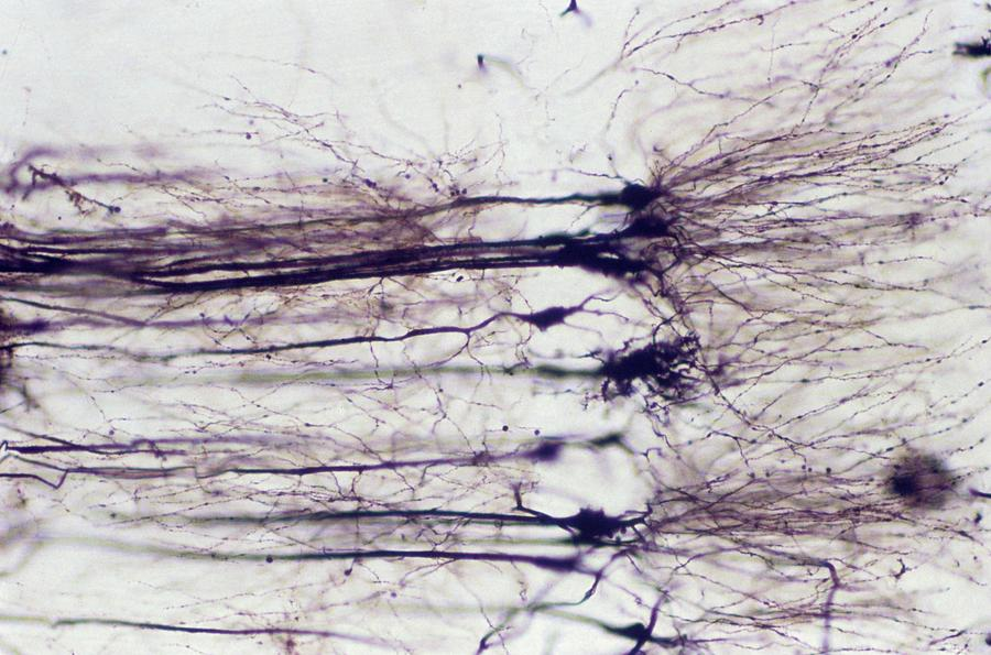 Anatomical Photograph - Nerve Cells by Overseas/collection Cnri/spl
