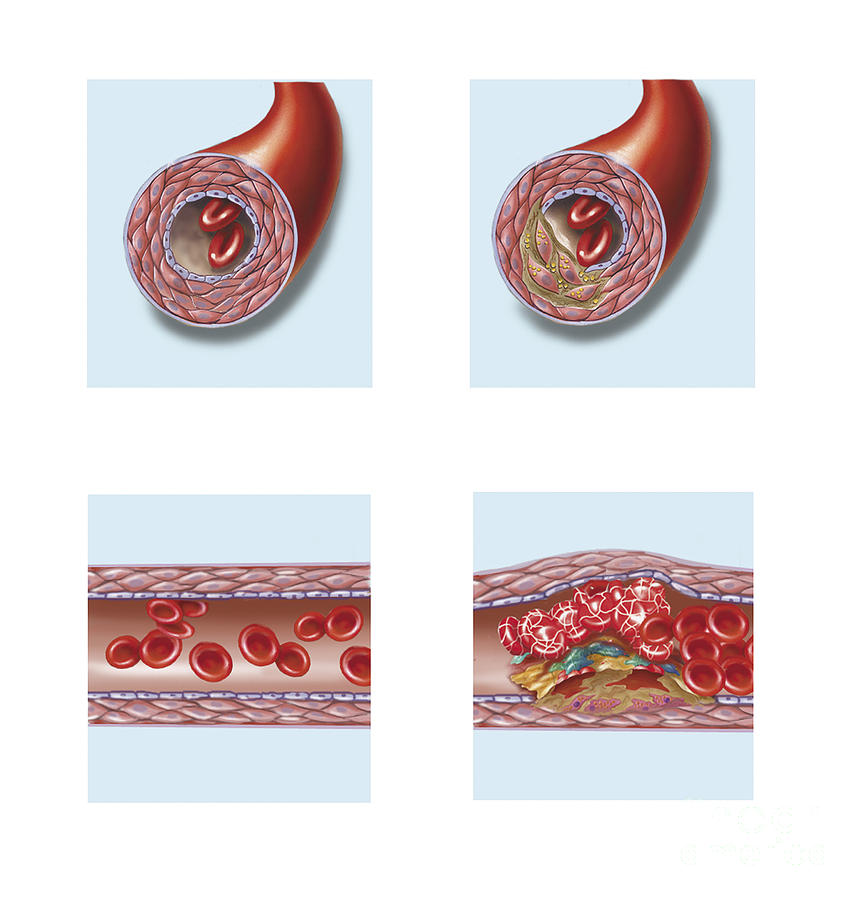 Normal Artery Compared To Plaque Digital Art