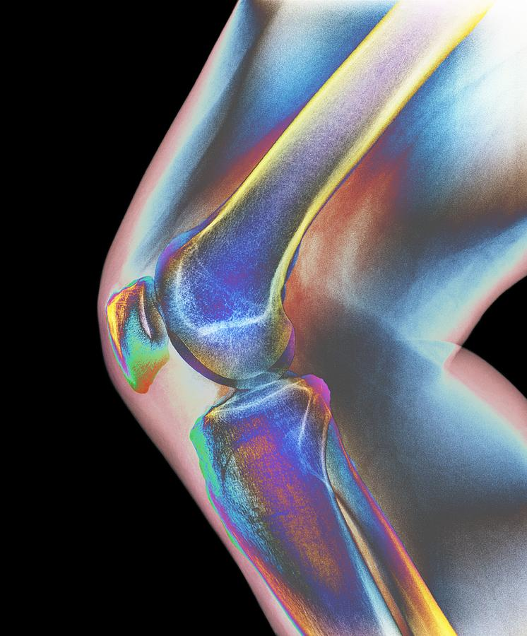 Normal Knee, X-ray Photograph by Dr P. Marazzi