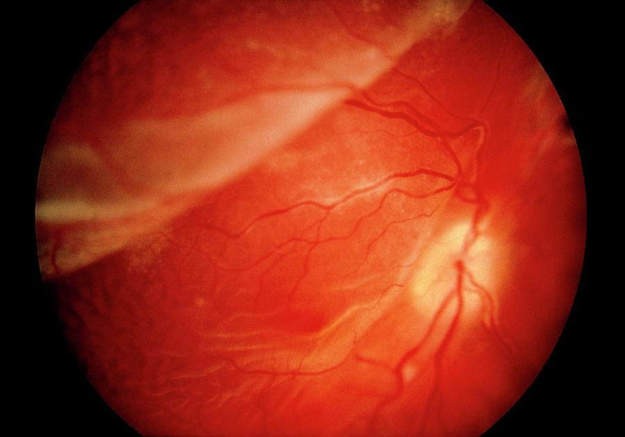 Eye Photograph - Ophthalmoscopy Of Detached Retina In Aids Patient by Sue Ford/science Photo Library