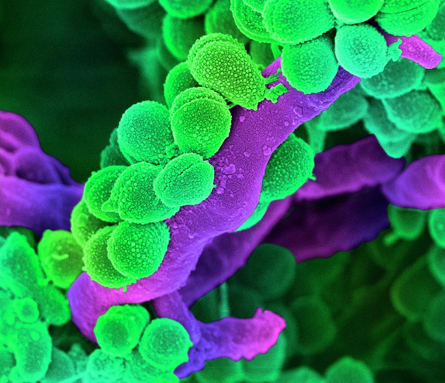 Streptococcus Photograph - Oral Streptococcus Bacteria by Science Photo Library