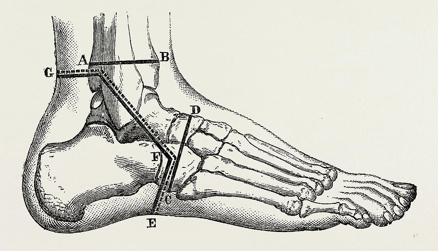 Osteo Plastic Resection Of The Foot Medical Equipment Drawing By Litz Collection