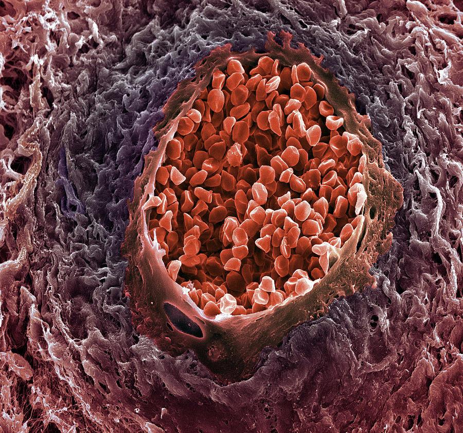 Medicine Photograph - Ovarian Cancer Blood Vessel by Steve Gschmeissner