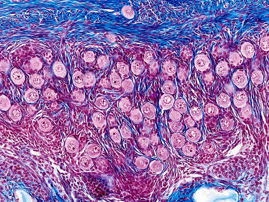 Biology Photograph - Ovarian Follicles, Light Micrograph by Science Photo Library