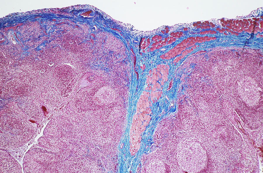 Palatine Tonsil Photograph By Astrid Hanns Frieder Michlerscience