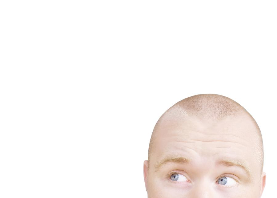 Adult Photograph - Part Of A Mans Head Looking Sideways by Chris and Kate Knorr