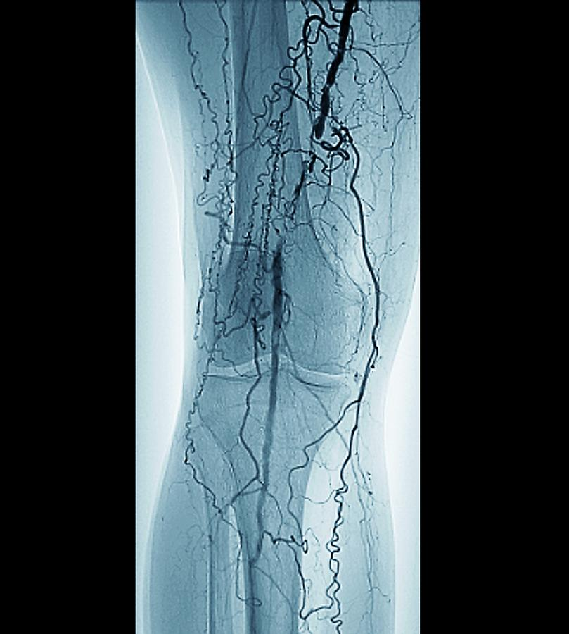 Black Background Photograph - Peripheral Vascular Disease In Diabetes by Zephyr/science Photo Library