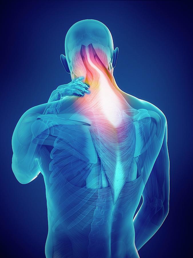 Artwork Photograph - Person With Neck Pain by Sebastian Kaulitzki/science Photo Library