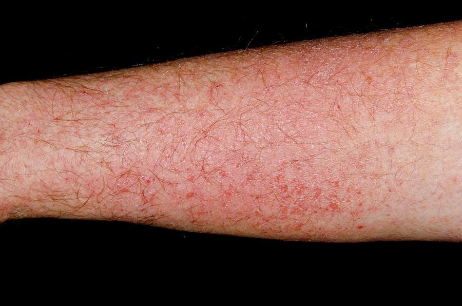 Photosensitive Rash On The Arm Photograph by Dr P. Marazzi
