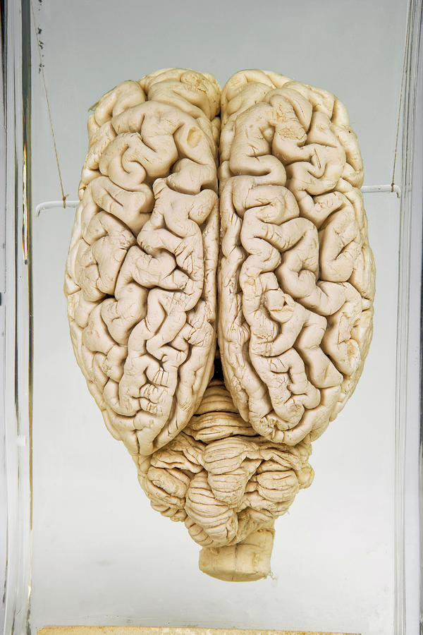 Pig Brain Photograph by Ucl, Grant Museum Of Zoology