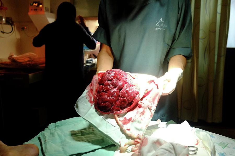 Placenta At The Delivery Room Photograph by Photostock-israel
