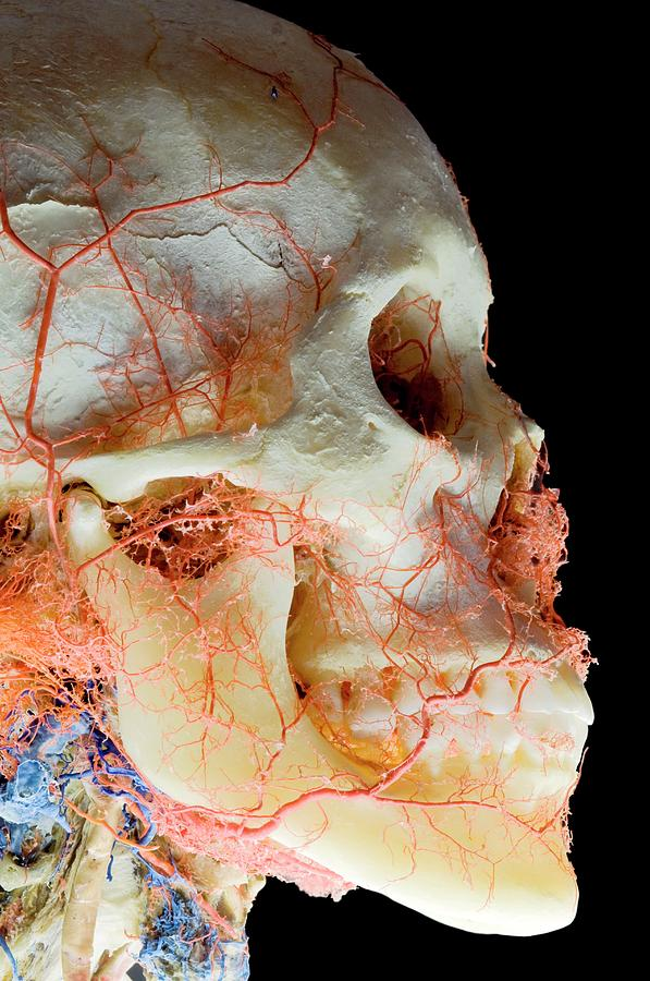 Exhibit Photograph - Plastinated Skull Exhibit by Thierry Berrod, Mona Lisa Production/ Science Photo Library
