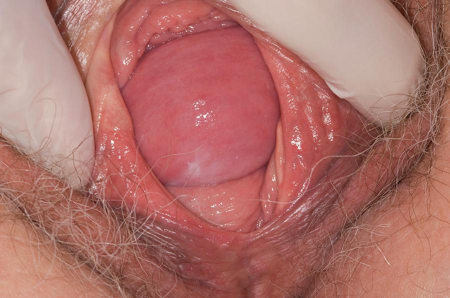 Vaginal dilation multiple sclerosistures — pic 7