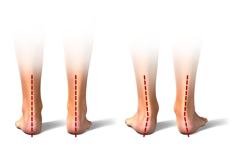 Foot Photograph - Pronation Of The Feet. Artwork by Science Photo Library