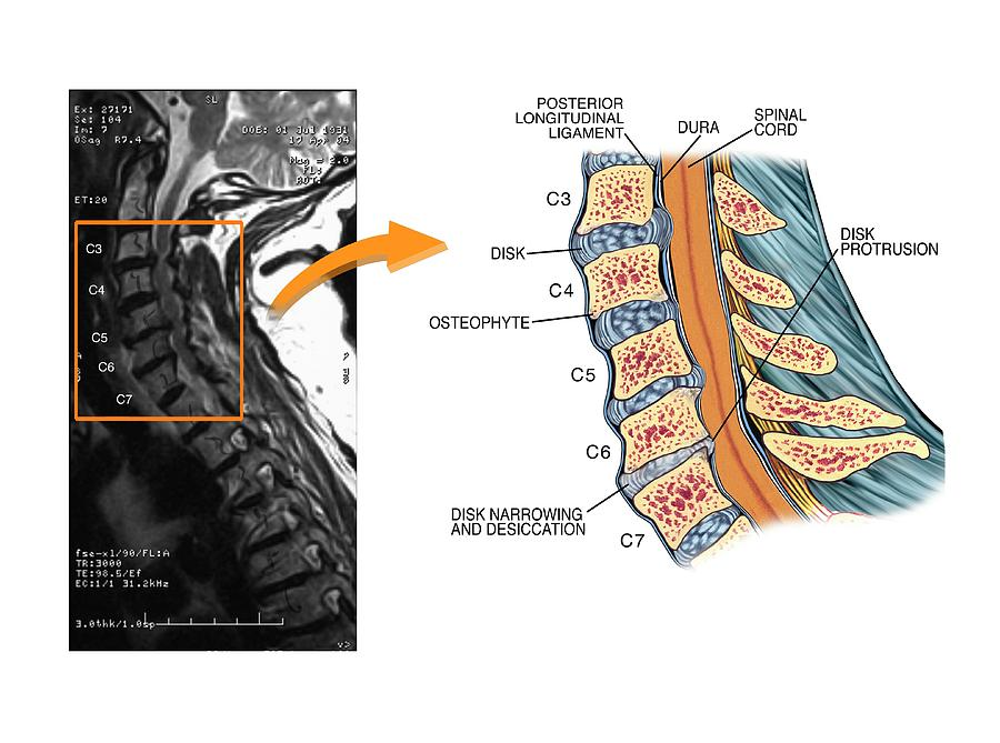 Protruding Disc In The Cervical Spine Photograph By John T Alesi
