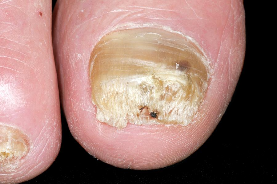 Psoriasis Of The Toe Nails by Dr P. Marazzi/science Photo Library