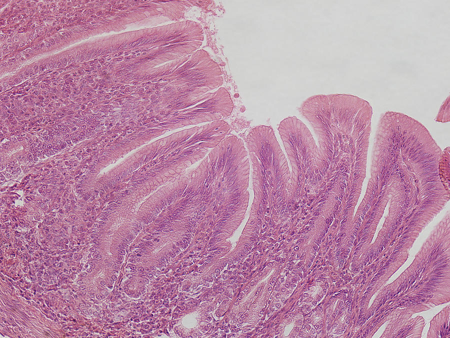 Pyloric Stomach Lm Photograph By Science Stock Photography