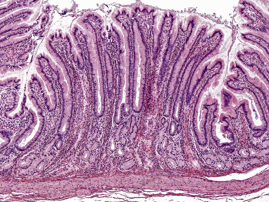Pyloric Stomach Mucosa Lm Photograph By Alvin Telser