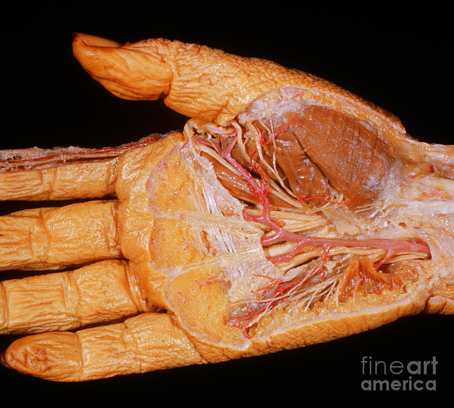 Right Hand, Palmar Dissection Photograph by VideoSurgery