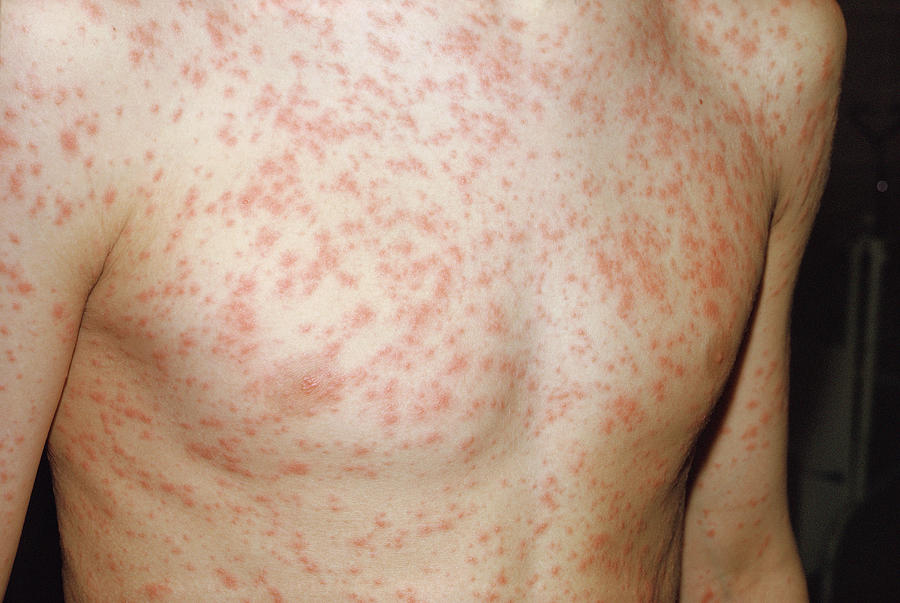 Rubella Photograph - Rubella Rash by Pr. Ph. Franceschini/cnri/science Photo Library