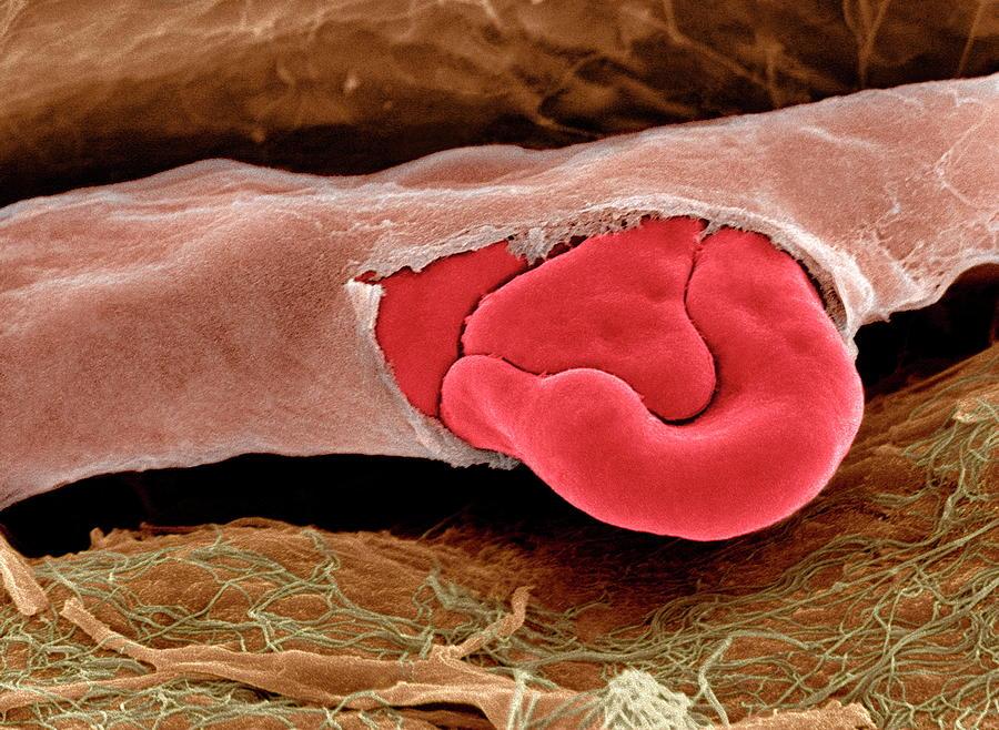 Erythrocyte Photograph - Ruptured Capillary by Steve Gschmeissner