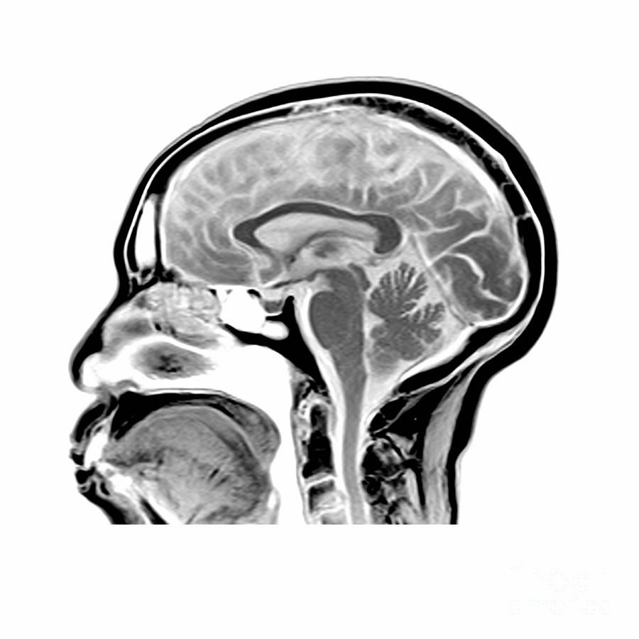 Magnetic Resonance Imaging Photograph - Sagittal Mri Of The Brain by Medical Body Scans