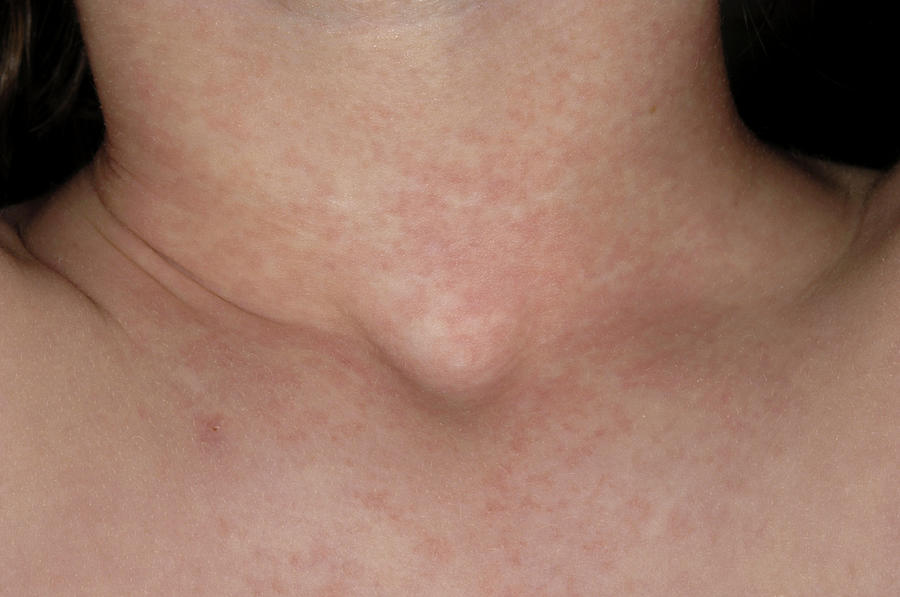 Scarlet Fever Rash Photograph by Dr P. Marazzi/science ...