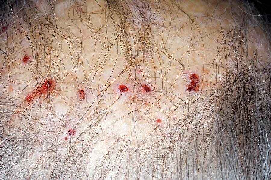 Bloodstream Photograph - Scratch Marks On Scalp In Renal Failure by Dr P. Marazzi/science Photo Library