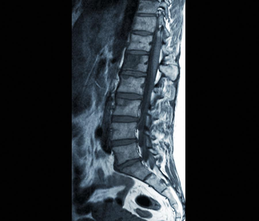 Secondary Spinal Cancer, Mri Scan Photograph by Science Photo Library