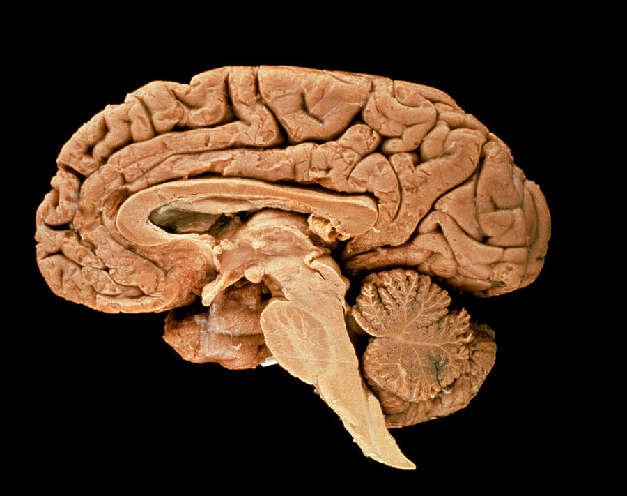 Section Through A Human Brain Photograph by Science ...