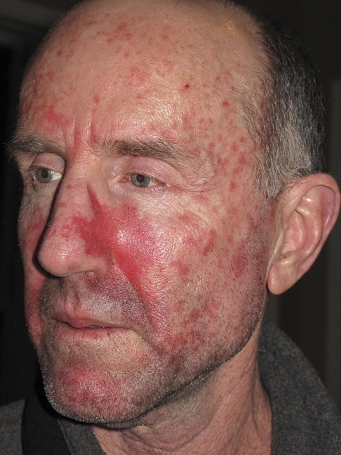 Skin Cancer Treatment Photograph by Bruceman