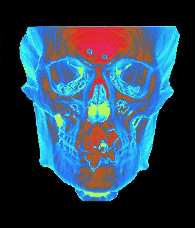 Ct Scan Photograph - Skull by Mehau Kulyk/science Photo Library
